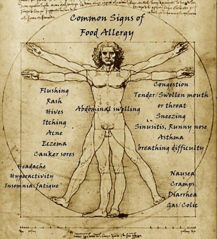 Vitruvian Food Allergies